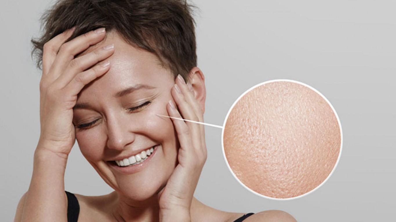 Masna koža